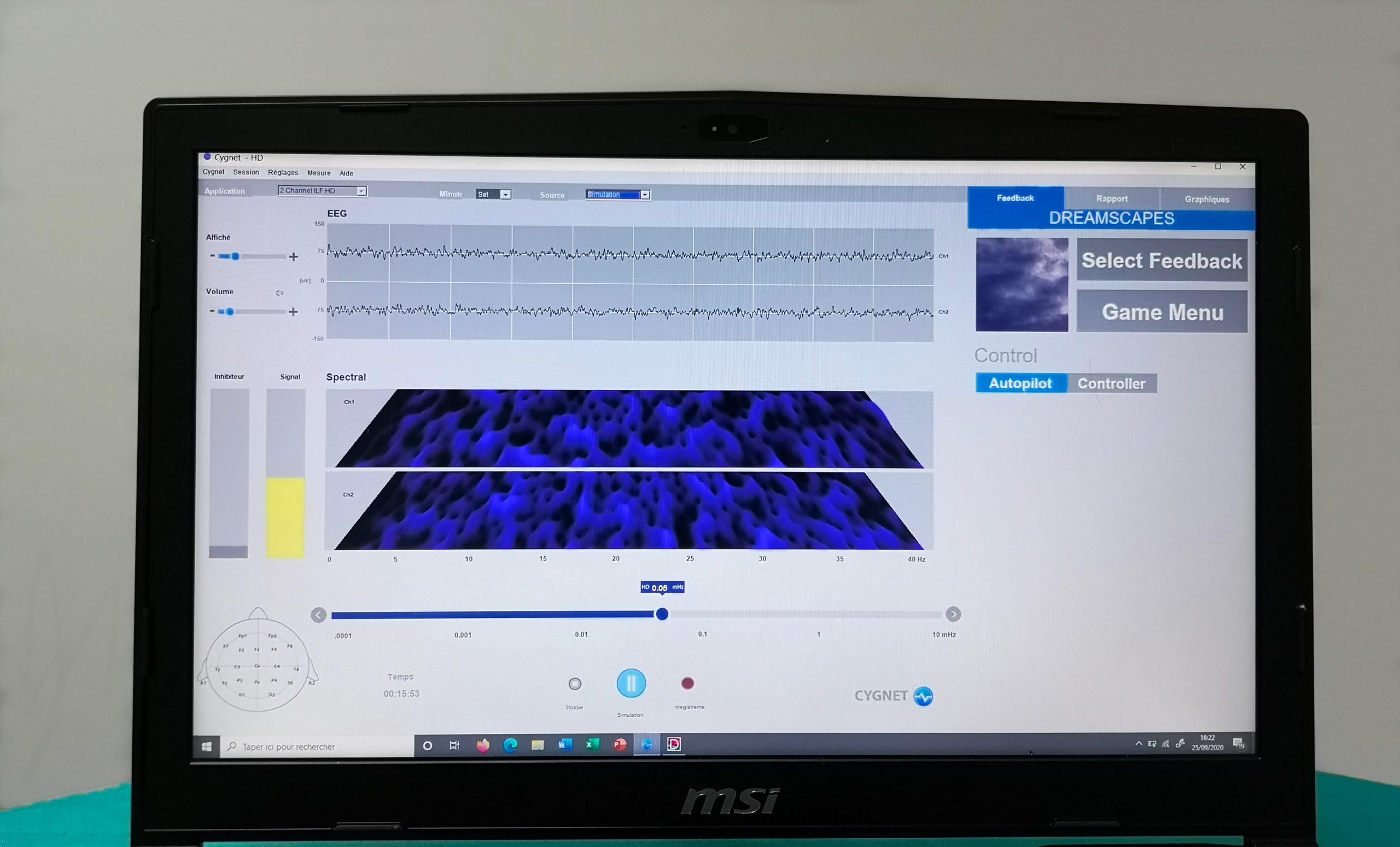 Écran de l'ordinateur du praticien de Neurofeedback
